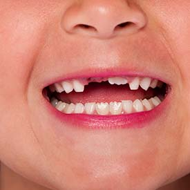 South Calgary Dental Crowns & Fillings | South Family Dental Care