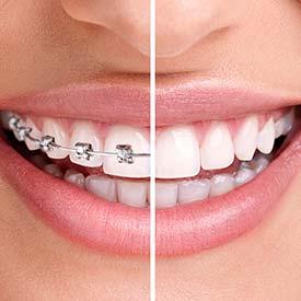 SE Calgary Orthodontic Dentistry
