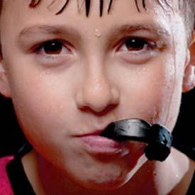 SE Calgary Sports Mouthguards