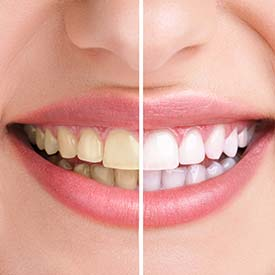 South Calgary Teeth Whitening | South Family Dental Care | Dr. Angela Sharma