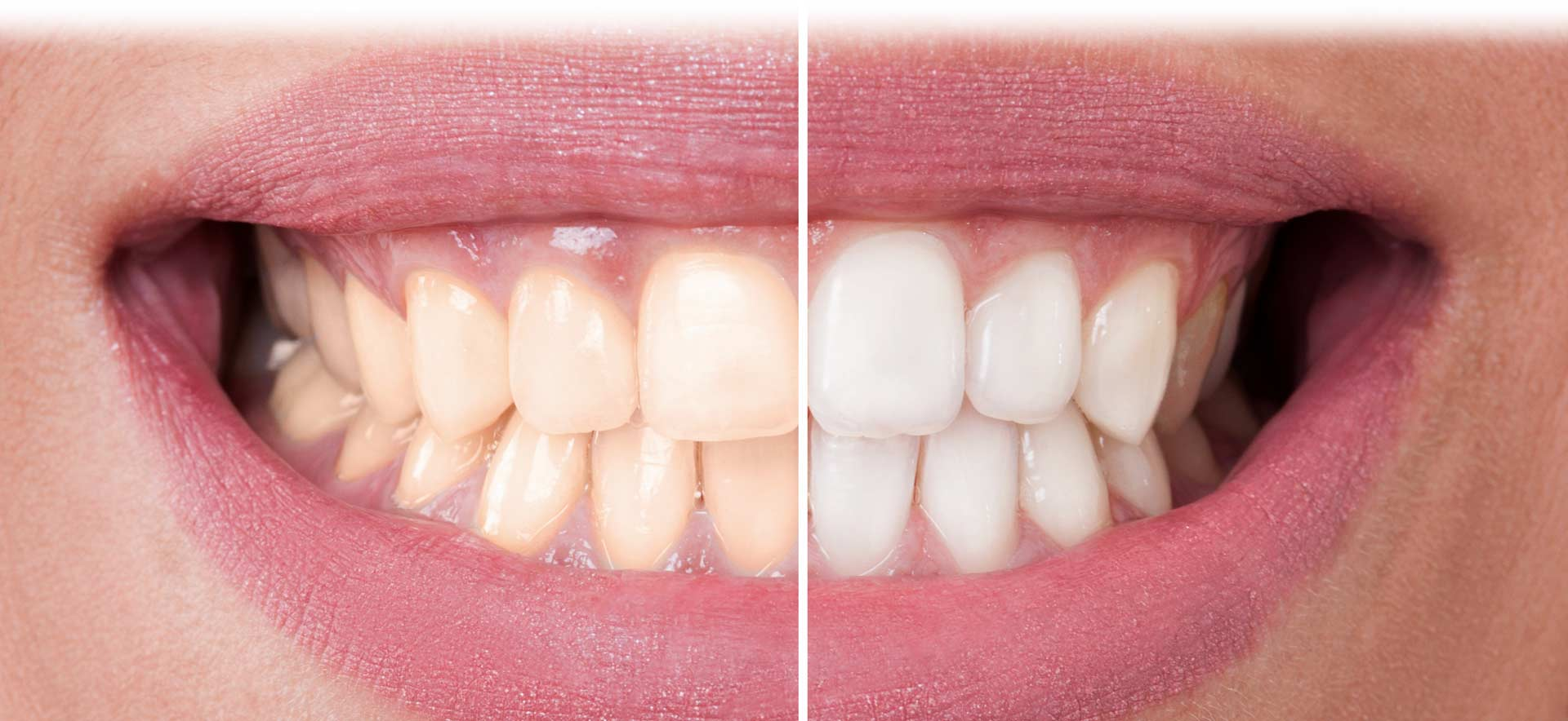 south-family-dental-teeth-whitening